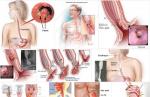 Để nhận biết được ung thư thực quản qua các dấu hiệu