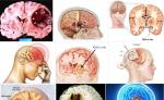 Phát hiện sớm ung thư não qua các biểu hiện