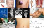 Thoát khỏi ung thư phầm mềm nếu phát hiện sớm qua dấu hiệu