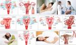 Phụ nữ cần chú ý ngay đến các dấu hiệu bệnh u xơ tử cung