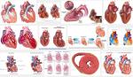 Cơ thể đang nói bạn mắc bệnh cơ tim phì đại dưới những dấu hiệu