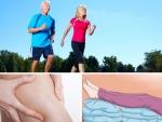 Phương pháp ngăn ngừa bệnh suy giãm tĩnh mạch chân đến với bạn