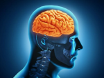 Cảnh báo bệnh phình động mạch não qua các biểu hiện khác thường của cơ thể