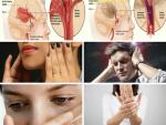 Tuyệt đối không được bỏ qua 4 dấu hiệu cảnh báo nguy cơ đột quỵ ở người trẻ