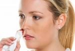 Đừng xem thường chảy máu cam vì bạn có thể mắc bệnh nguy hiểm