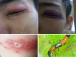 Bạn cần biết tác hại kiến ba khoang gây ra trên cơ thể