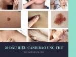 20 Dấu hiệu cảnh báo nguy cơ ung thư - Ung thư đừng để quá muộn