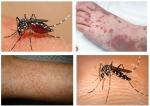[ Video sức khỏe ] cảnh bảo dịch sốt xuất huyết