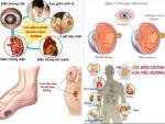 Tiểu đường tuýp 2 (type 2) biến chứng