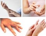 Đau đầu ngón tay - Dấu hiệu cảnh báo bệnh nguy hiểm