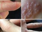 Dấu hiệu bất thường ở ngón tay cho thấy cơ thể cần phải thải độc ngay!