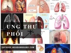 Đến bệnh viện ngay nếu bạn có những triệu chứng của ung thư phổi