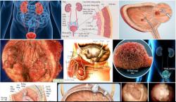 Chỉ điểm ung thư bàng quan qua các dấu hiệu