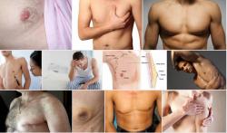 Triệt tiêu ngay ung thư vú nam khi phát hiện những dấu hiệu