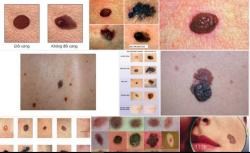 Ung thư hắc tố - Có thể tự nhận biết qua biểu hiện của cơ thể