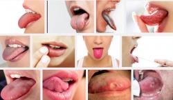 Cảnh báo bạn đang bị ung thư lưỡi khi xuất hiện những dấu hiệu sau