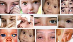 Nguy cơ bạn đang mắc phải bệnh ung thư mắt khi có những dấu hiệu sau