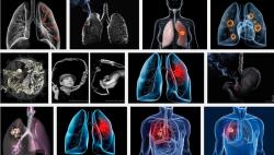 Triệu chứng nói lên bạn đang mắc phải bệnh ung thư phế quản