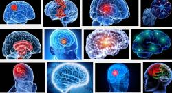 Dấu hiệu để bạn phát hiện u não nhanh chóng nhất