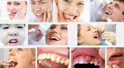 Bạn đã quan tâm đến những dấu hiệu phát hiện bệnh u răng chưa?