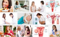 Mách chị em 3 mẹo để phòng tránh bệnh u xơ tử cung hiệu quả