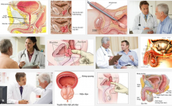 Phái mạnh nhất định phải biết những dấu hiệu của bệnh u xơ tuyến tiền liệt