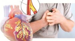 Lời cảnh báo sức khỏe khi xuất hiện dấu hiệu bệnh mạch vành