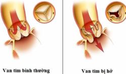 Thông tin về bệnh hở van tim 3 lá mà các bạn bắt buộc phải biết