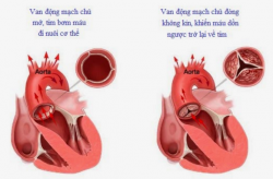 Bệnh hở van động mạch chủ do thấp dẫn đến tử vong nếu không phát hiện sớm