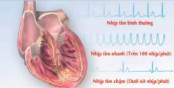 Tất tần tật những thông tin về bệnh nhịp tim chậm bạn cần quan tâm
