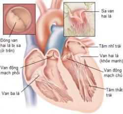 Tìm hiểu về dấu hiệu mắc phải bệnh sa van hai lá thường gặp