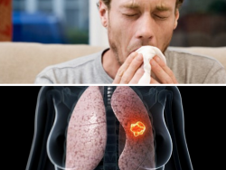 Cảnh báo bệnh nguy hiểm khi xuất hiện những triệu chứng ho khác thường