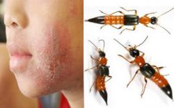 Cảnh báo loại côn trùng có độc hơn cả rắn hổ mang đang tồn tại xung quanh bạn