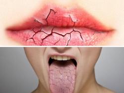 Khô miệng, đừng lo với những phương pháp vượt qua bệnh hiệu quả