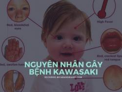 Nguyên nhân gây bệnh Kawasaki