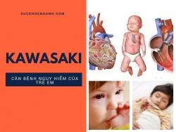 Lời tự sự của bà mẹ có con mắc kawasaki - những nhầm lẫn tai hại