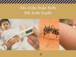 [Cảnh Báo] Dấu hiệu nhận biết sốt xuất huyết