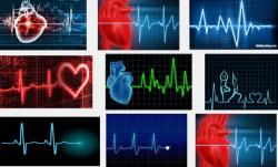 Những điều cần biết khi mắc phải bệnh rối loạn nhịp tim
