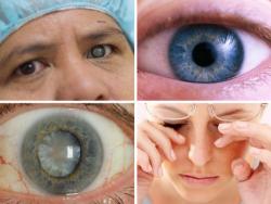 Những loại bệnh về mắt mà người cao tuổi dễ mắc phải