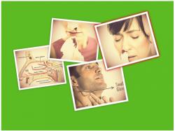 Ung thư vòm họng có triệu chứng gì?