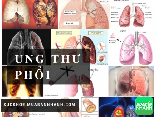 Ung thư phổi là căn bệnh phổ biến nhất hiện nay
