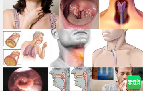 Làm thế nào để biết mình có bị ung thư thanh quản ?, 30, Phương Thảo, Cẩm Nang Sức Khỏe, 21/09/2016 10:10:15