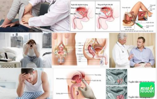 Ung thư tuyến tiền liệt sẽ được chữa trị nếu phát hiện sớm