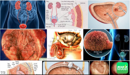 Ung thư bàng quang sẽ được chữa trị nếu phát hiện sớm