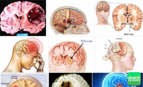 Ung thư não có thể chữa trị nếu phát hiện kịp thời