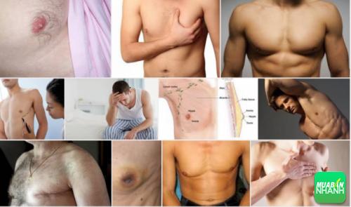 Ung thư vú ở nam đang ngày càng gia tăng