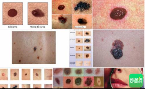 Nếu da có biểu hiện lạ bạn cần khám ngay để phát hiện sớm ung thư hoắc tố