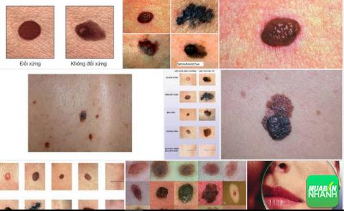 Ung thư hắc tố - Có thể tự nhận biết qua biểu hiện của cơ thể, 44, Phương Thảo, Cẩm Nang Sức Khỏe, 21/09/2016 14:20:32