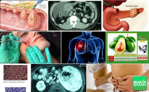 Biểu hiện rõ nhất bạn có thể phát hiện mình có ung thư trung mô, 45, Phương Thảo, Cẩm Nang Sức Khỏe, 21/09/2016 14:28:50