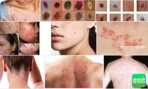 Kiểm tra da để thấy được sự thay đổi giúp phát hiện ung thư